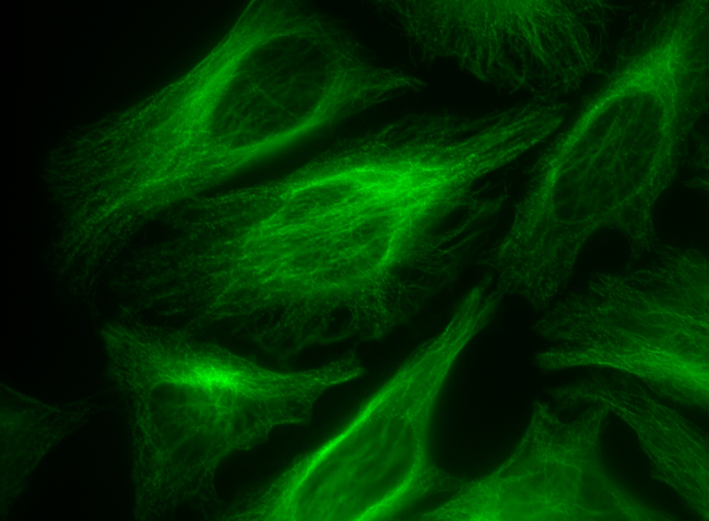 <p>HeLa cells were incubated with rabbit anti-tubulin followed by AAT's AF488-labeled goat anti-rabbit IgG (H+L).</p>