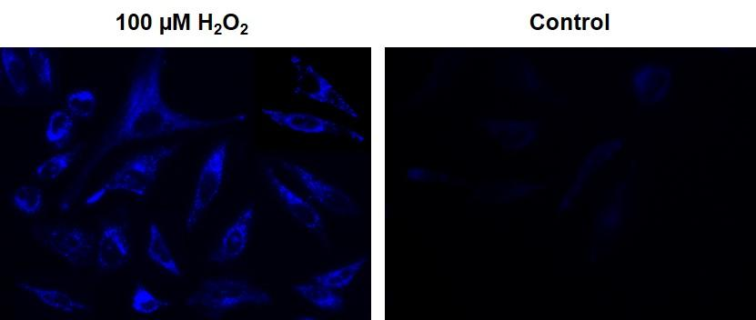 Fluorescence images of intracellular hydrogen peroxide in HeLa cells using Cell Meter&trade; Intracellular Fluorimetric Hydrogen Peroxide Assay Kit (Cat# 11504). HeLa cells at 10,000 cells/well/100 &micro;L were seeded overnight in a Costar black wall/clear bottom 96-well plate. 100 &micro;M H<sub>2</sub>O<sub>2</sub>: HeLa cells were stained with OxiVision&trade; Blue peroxide sensor for 30 minutes and treated with 100 &micro;M hydrogen peroxide at 37 &deg;C for 90 minutes. Control: Cells were stained with OxiVision&trade; Blue peroxide sensor but without hydrogen peroxide treatment. The fluorescence signals were measured using fluorescence microscope with a DAPI filter.