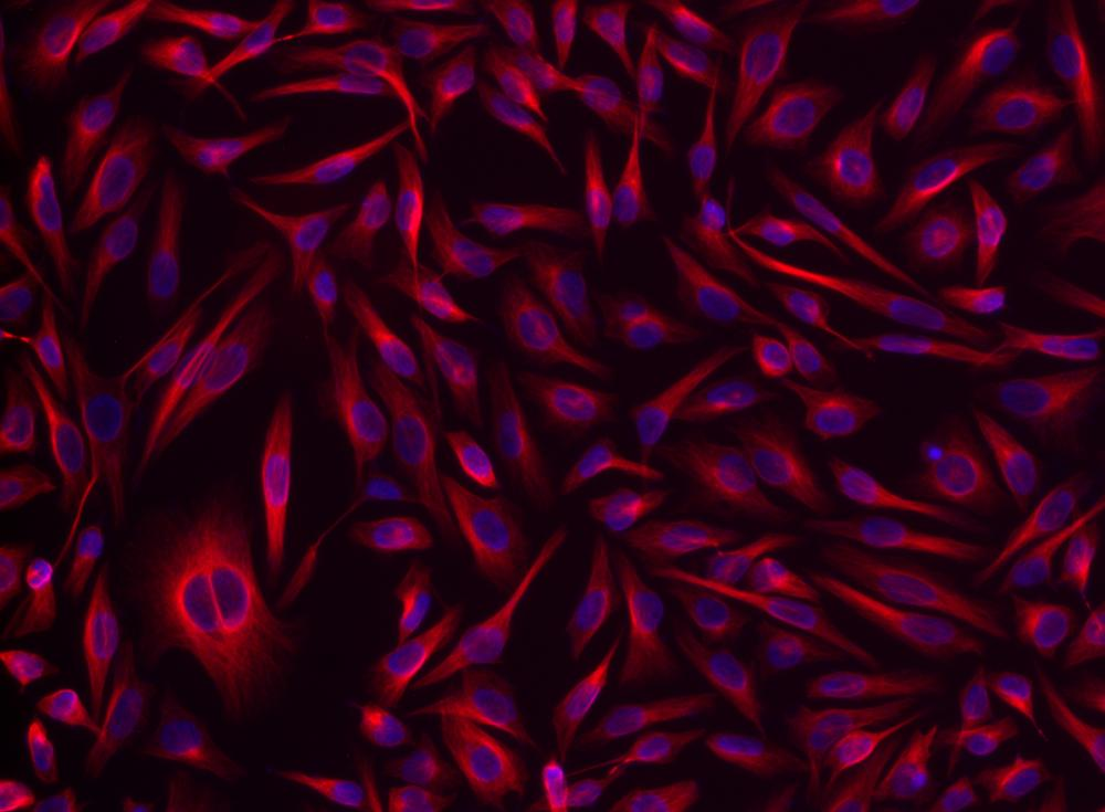 <p>HeLa cells were incubated with rabbit&nbsp;anti-tubulin followed by iFluor<sup>TM</sup> 532&nbsp;goat anti-rabbit&nbsp;IgG conjugate (Red). Cell nuclei were stained with Hoechst 33342 (Blue, Cat#17530).</p>