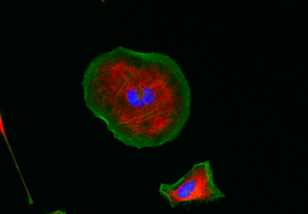 <p>HeLa cells were stained with rabbit anti-tubulin followed with iFluor<sup>TM</sup> 555 goat anti-rabbit IgG (H+L) (red); actin filaments were stained with Phalloidin-iFluor<sup>TM</sup> 488 conjugate (green); and nuclei were stained with DAPI (blue).</p>