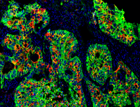 PSA mulitcolor tissue stain
